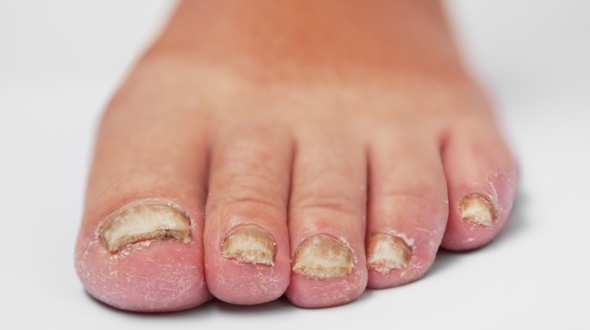 Nail Fungus – Nevada Foot Institute
